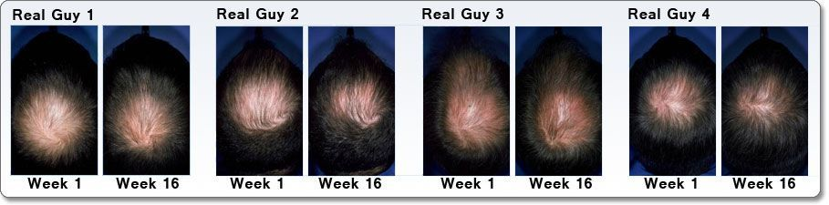 men rogaine before and after pictures