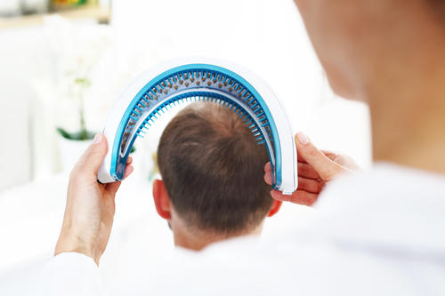 iRestore hair loss treatment