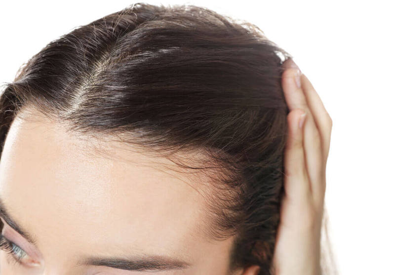 A young woman with a hair loss problem