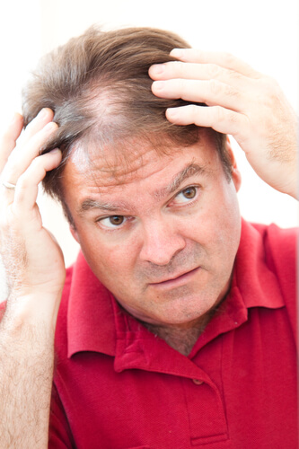 A man suffering from minoxidil shedding