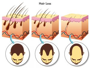 A diagram showing how miniaturization of the hair follicle leads to hair loss